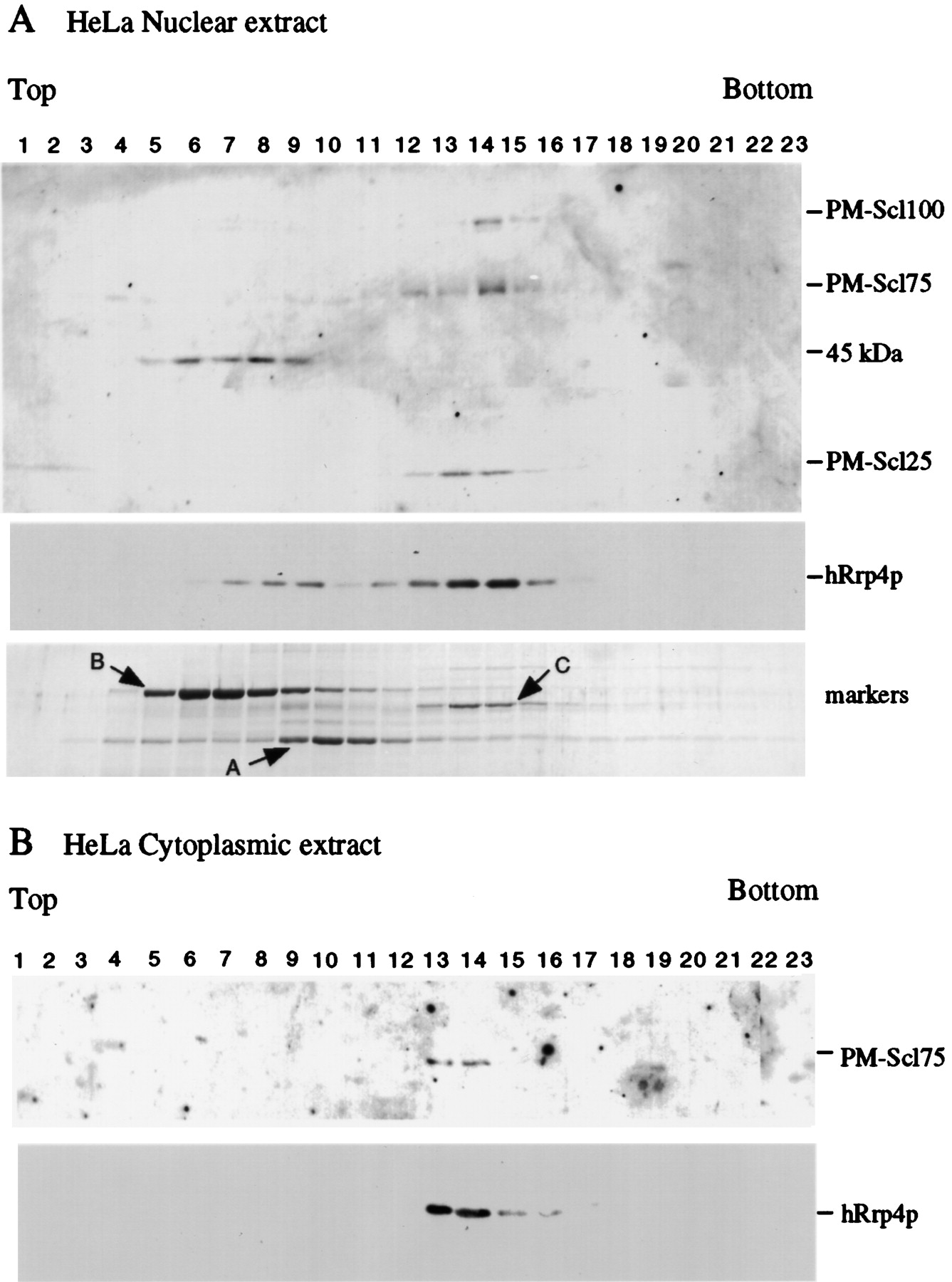 The yeast exosome and human PM–Scl are related complexes of