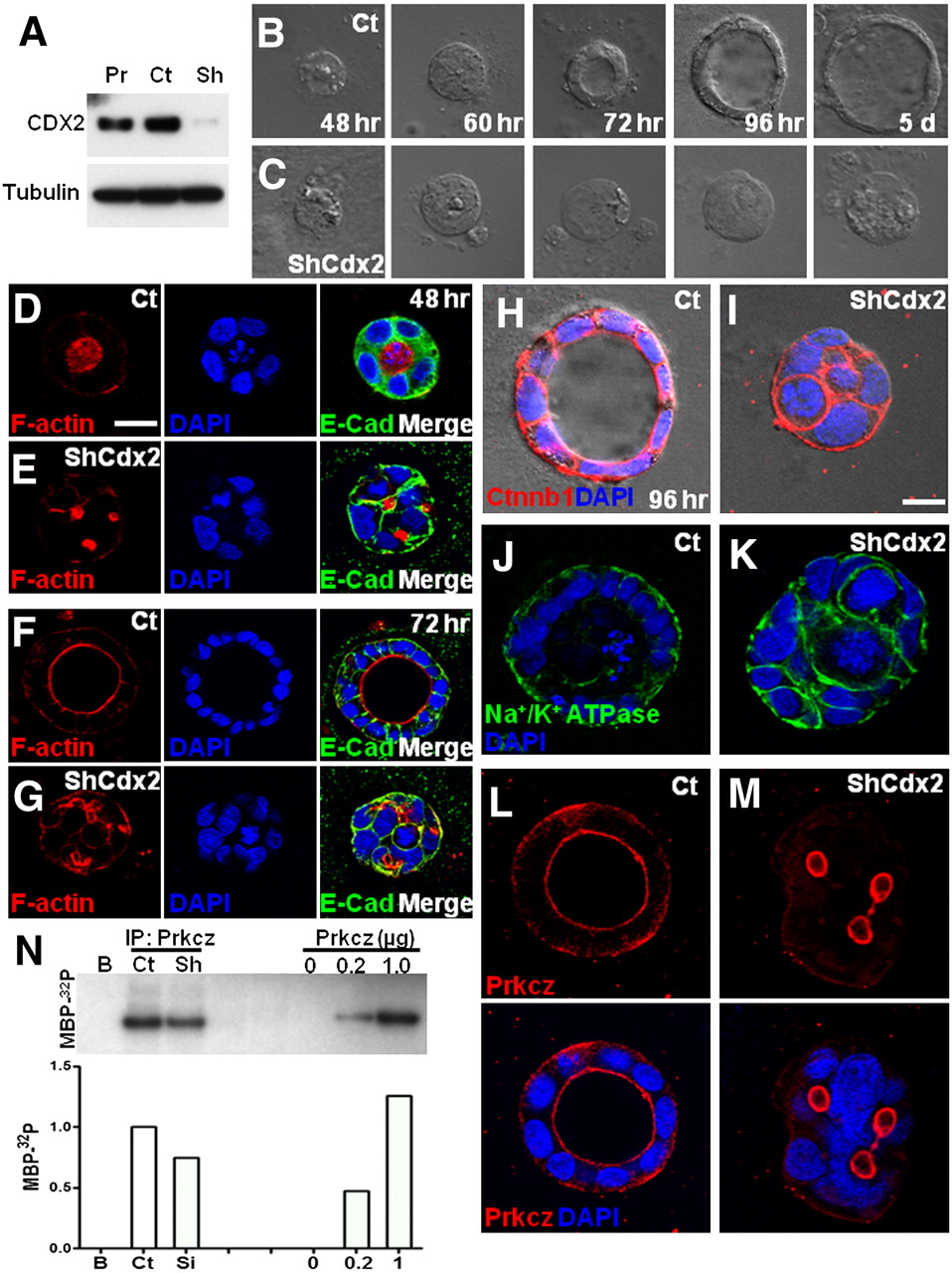 Cdx2 regulates endo-lysosomal function and epithelial cell